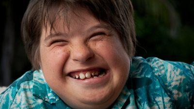 Down Sendromu Nedir? Belirtileri ve Tedavisi