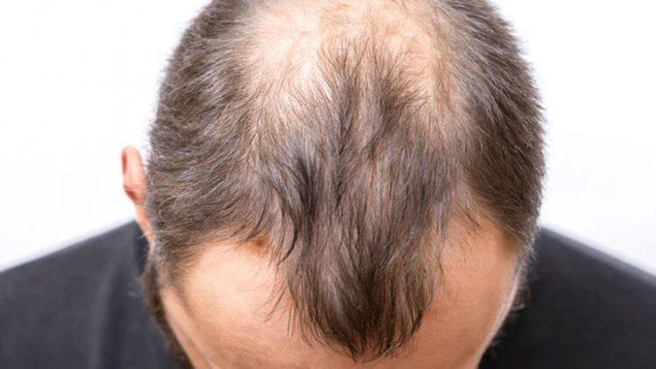 Erkeklerde Saç Dökülmesini Önlemek Mümkün mü?