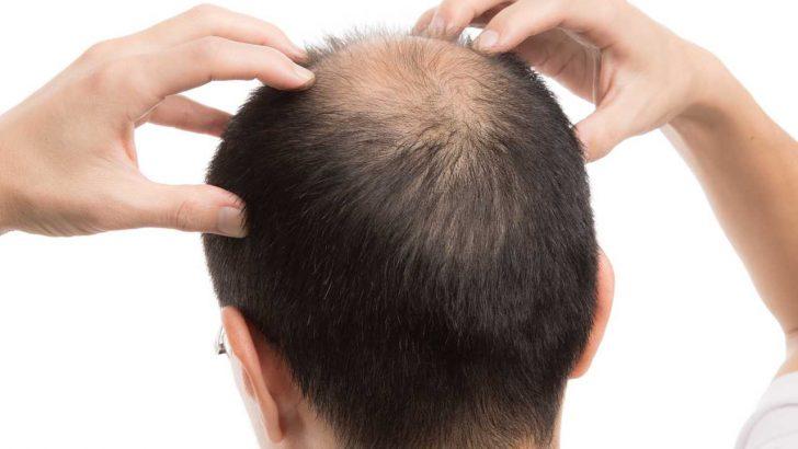 Saç Dökülmesi İçin Mutlaka Almanız Gereken 6 Besin