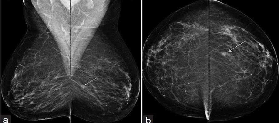 Mamografi Çektirmenin Zararı Var mı