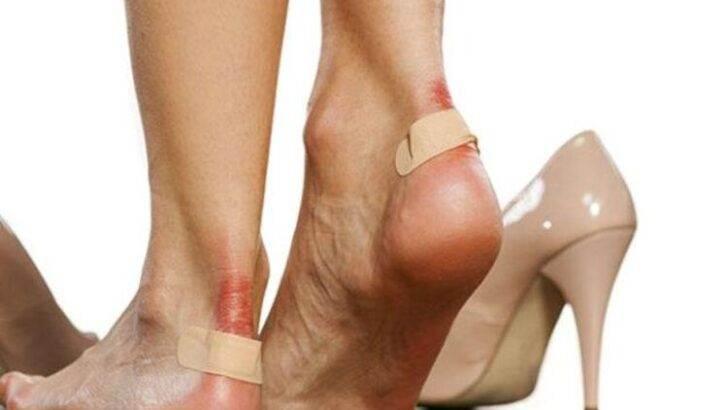 Dar Gelen Ayakkabılar İçin Pratik Çözümler