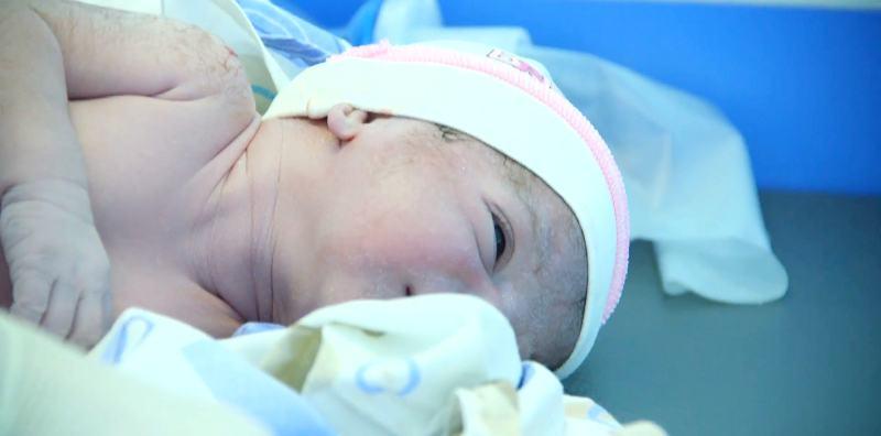 Mavi Bebek Hastalığı Belirtileri Tedavisi