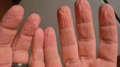 Suda Parmaklar Neden Buruşur?