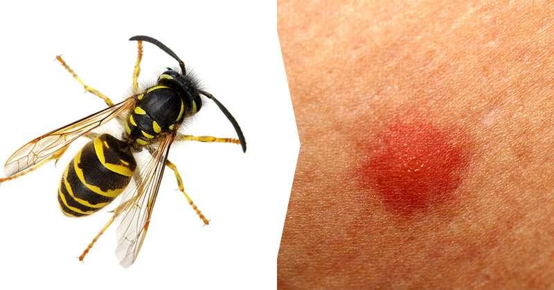 Arı Sokması Alerji Belirtileri Ve Tedavisi