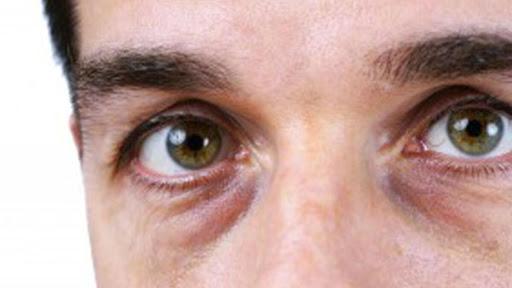 Göz Altı Morlukları Nedenleri ve Tedavisi