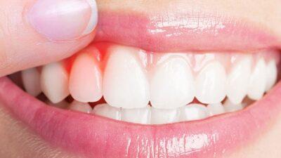 Diş Eti Çekilmesi ile Baş Etme Yolları